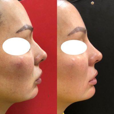 Коррекция формы носа филлером 35