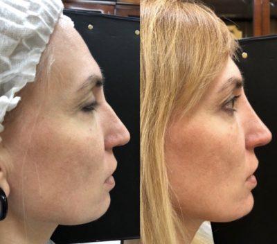 Коррекция формы носа филлерами 36