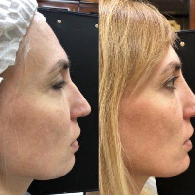 Коррекция формы носа филлером 36
