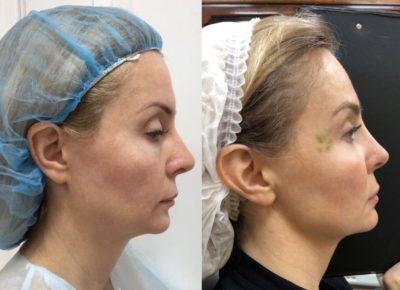 Коррекция формы носа филлерами 37