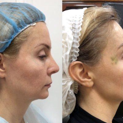 Коррекция формы носа филлером 37