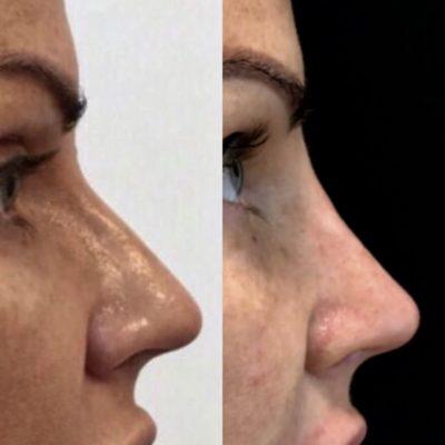 Коррекция формы носа филлером 38