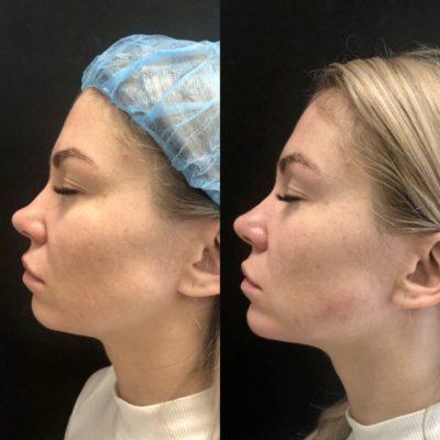 Коррекция формы носа филлером 39