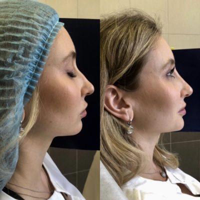 Коррекция формы носа филлером 40