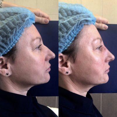 Коррекция формы носа филлером 41