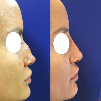Коррекция формы носа филлером 42