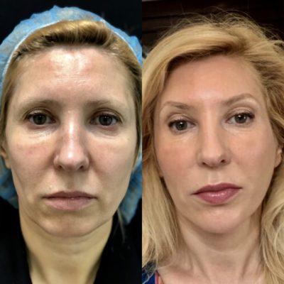 Подтяжка лица без операции 25