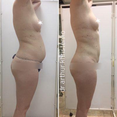 Body Tite 0