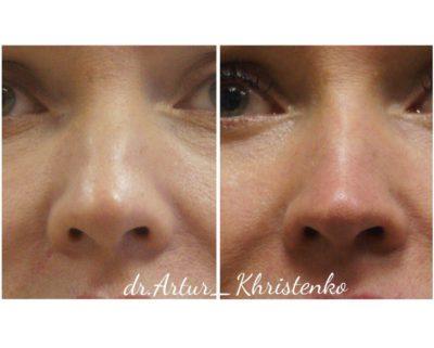 Коррекция формы носа филлерами 43