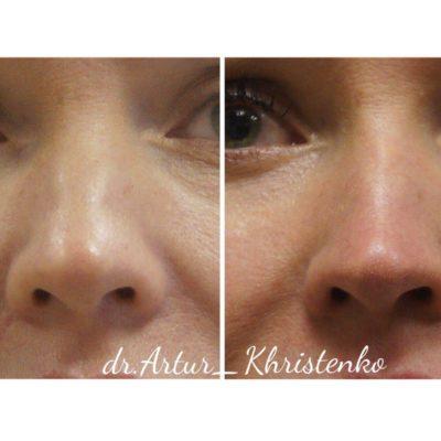 Коррекция формы носа филлером 43