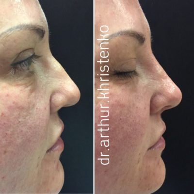 Коррекция формы носа филлером 44
