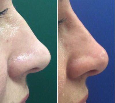 Коррекция формы носа филлерами 45