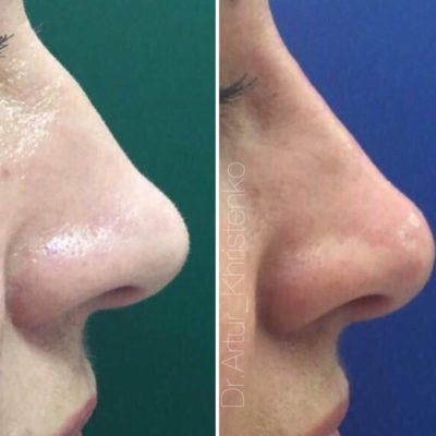 Коррекция формы носа филлером 45