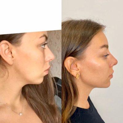 Объемное моделирование лица 105