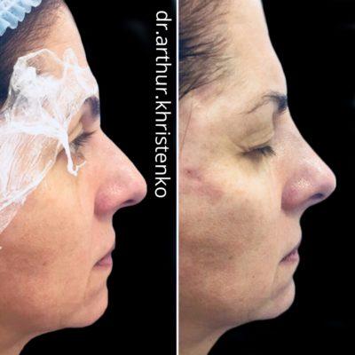 Коррекция формы носа филлером 46