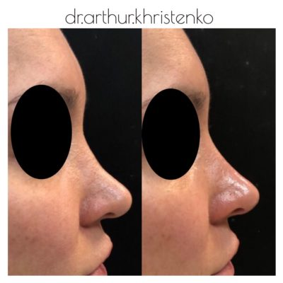 Коррекция формы носа филлером 47