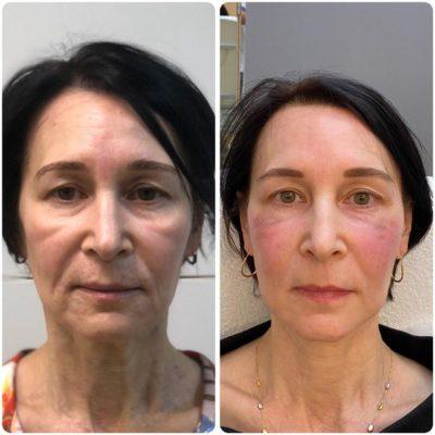 Подтяжка лица без операции 41