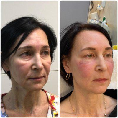 Подтяжка лица без операции 42
