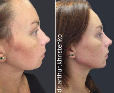 Коррекция формы носа филлерами 49