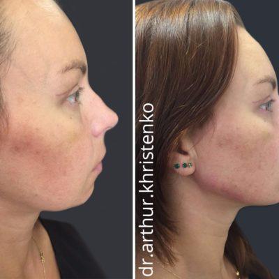 Коррекция формы носа филлером 49