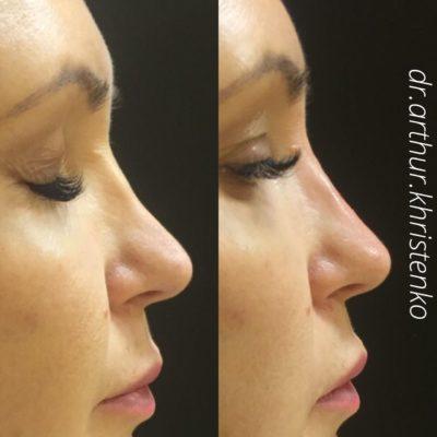 Коррекция формы носа филлером 50