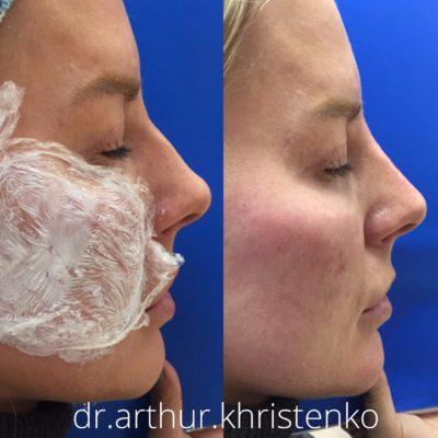Коррекция формы носа филлером 51