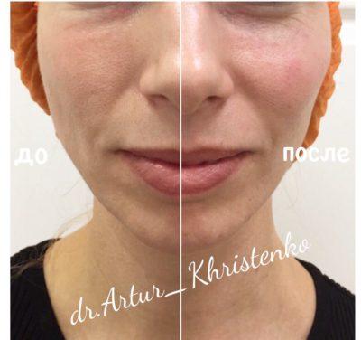 Объемное моделирование лица 49