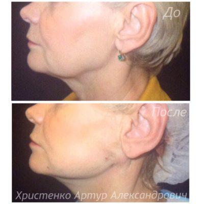 Подтяжка лица без операции 14