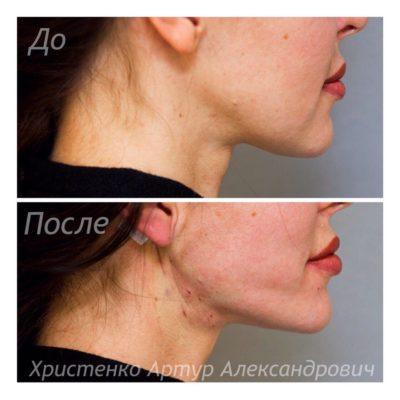 Подтяжка лица без операции 16