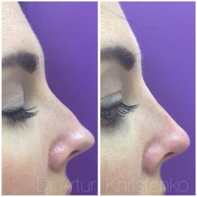 Коррекция формы носа филлером 52