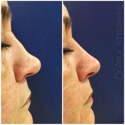 Коррекция формы носа филлером 53