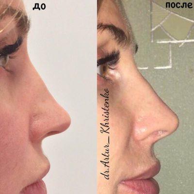 Коррекция формы носа филлером 54