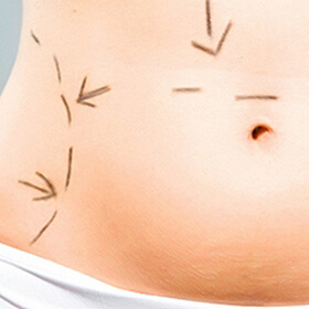 Пластика груди и живота после родов