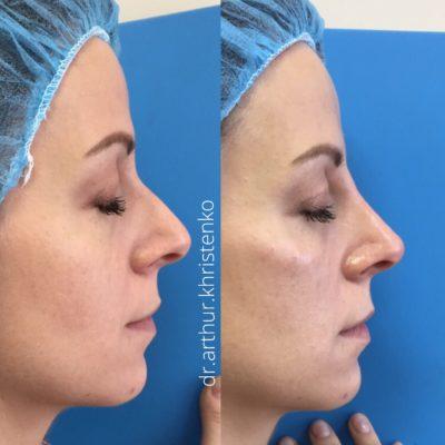 Коррекция формы носа филлером 55