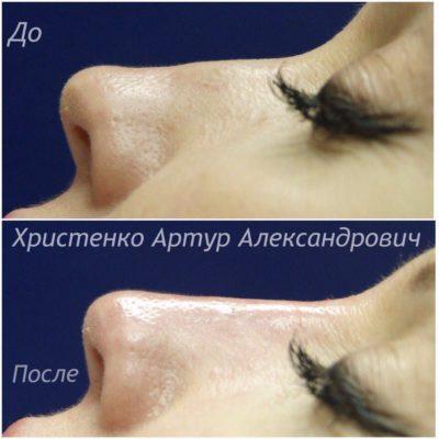 Коррекция формы носа филлером 56
