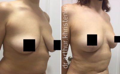 Подтяжка груди без имплантов: мастопексия 1