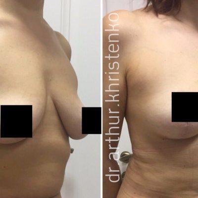 Мастопексия (подтяжка груди) 1