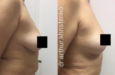 Подтяжка груди без имплантов: мастопексия 2