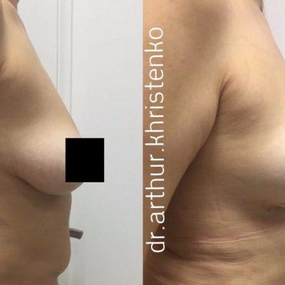 Мастопексия (подтяжка груди) 2