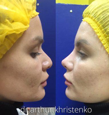 Коррекция формы носа филлерами 57