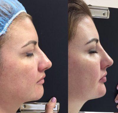 Коррекция формы носа филлерами 58