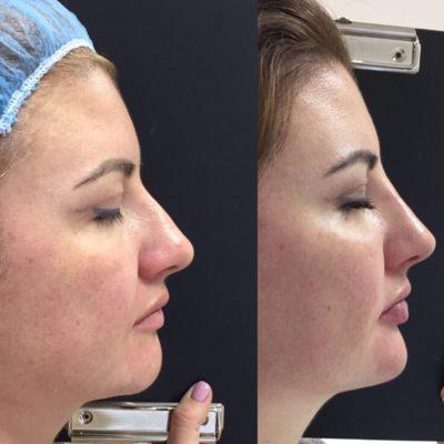 Коррекция формы носа филлером 58
