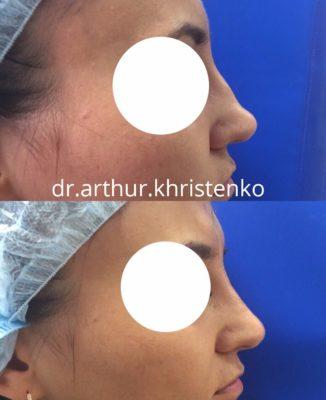 Коррекция формы носа филлерами 59