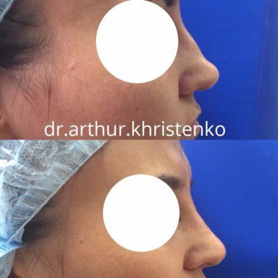 Коррекция формы носа филлером 59