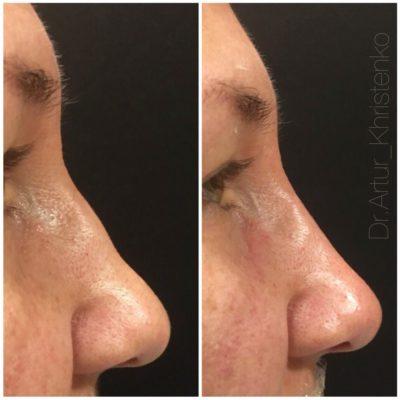 Коррекция формы носа филлером 60