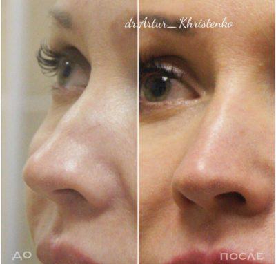 Коррекция формы носа филлерами 61