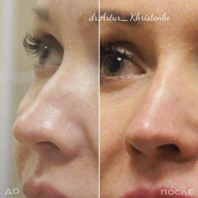 Коррекция формы носа филлером 61