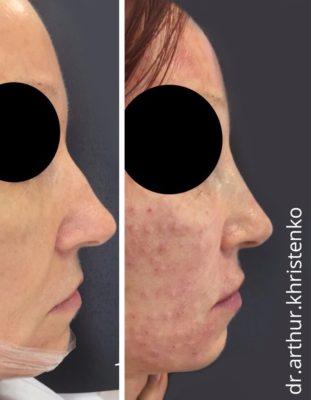 Коррекция формы носа филлерами 62