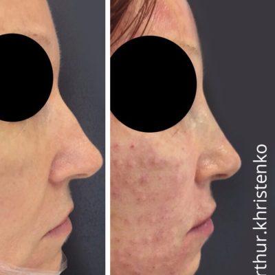 Коррекция формы носа филлером 62