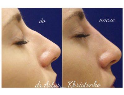 Коррекция формы носа филлерами 63